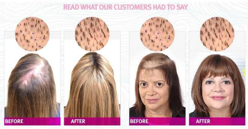 Puri Hair Growth Formula Results